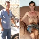 Justiça dá 20 dias para retirada de verme da cabeça de paciente em MS